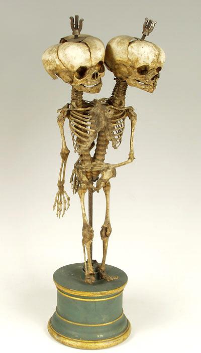 Скелет сиамских близнецов. Препарат Ф. Рюйша