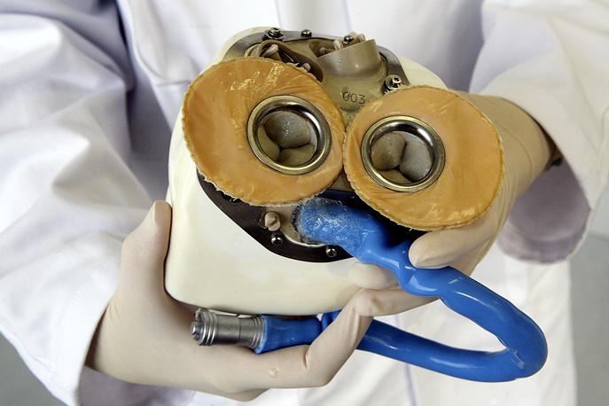 На фото первый прототип искусственного сердца, представленный французами еще в 2008 году