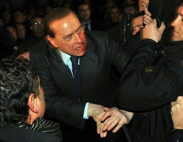 2009 год. В Милане неизвестные напали на председателя Совета министров Италии Сильвио Берлускони. В главу правительства бросили сувенирную фигурку, в результате чего он получил повреждение зубов и перелом носа