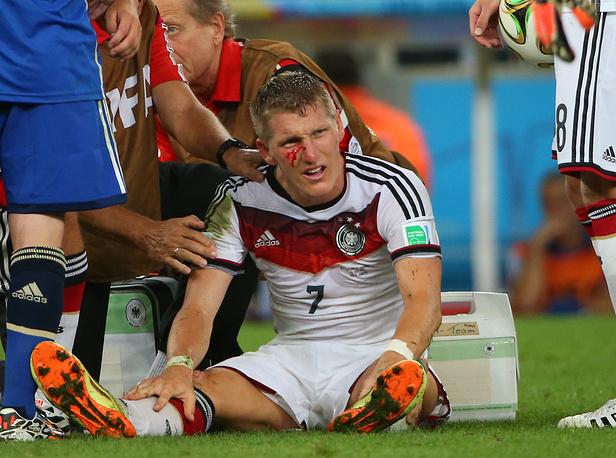 Бастиан Швайнштайгер с разбитым лицом