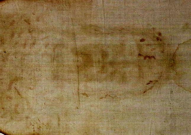 В двух проекциях изображено человеческое тело - анфас и со спины