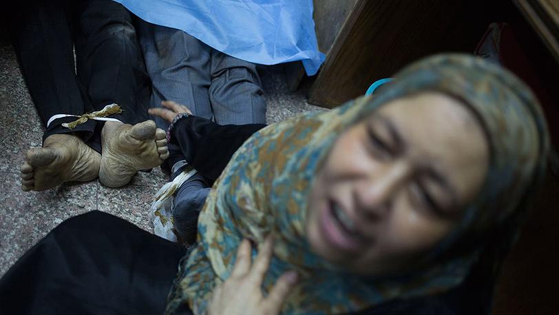 Пострадавшие в результате столкновений во время митинга в Каире. Фото AP Photo/Hassan Ammar