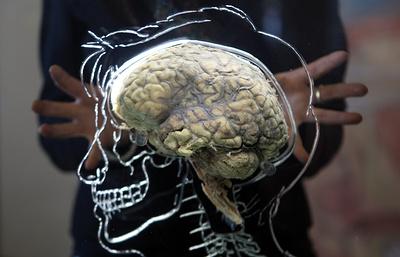Американские ученые намерены оживить умерший мозг человека